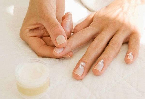 Пять частых проблем с ногтями: причины и пути решения