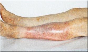 Лечение атеросклероза народными средствами