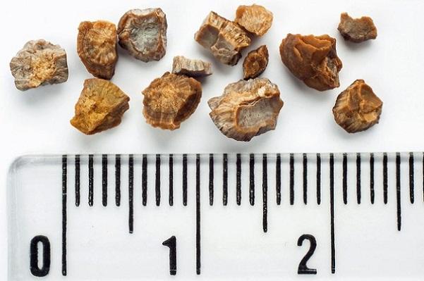 Камни в почках: лечение народными средствами