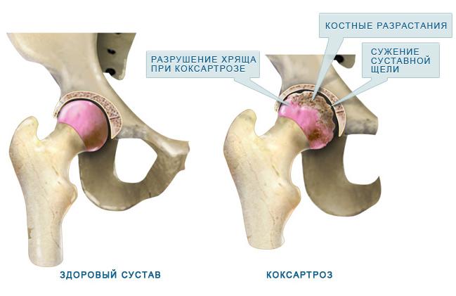 Лечение болезней тазобедренного сустава народными средствами