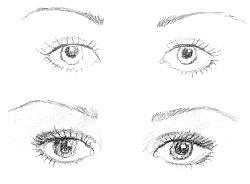 Выпуклые глаза