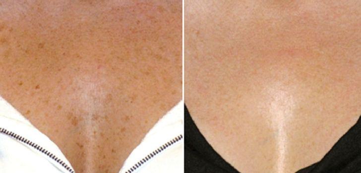Пигментные пятна на груди: как убрать, причины