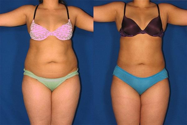 Как избавиться от висцерального жира: фото до и после