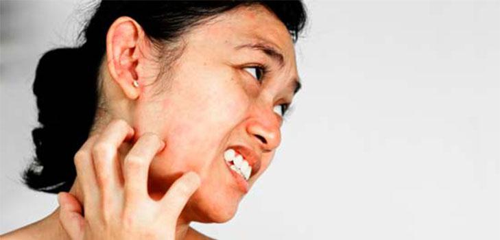Подкожный клещ на лице у человека: фото, симптомы и лечение